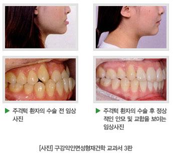 주걱턱 환자의 수술 전 임상사진, 주걱턱 환자의 수술 후 정상적인  안모 및 교합을 보이는 임상사진, [사진] 구강악안면성형재건학 교과서 3판