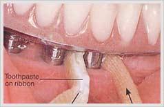 잇몸과 틀니, 임플란트 상부 구조물 사이의  공간으로 리본을 넣고 빼는 과정을 반복함  으로써 세척