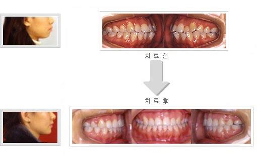 덧니와 함께 입이 돌출되어 치아 4개 발거한 후 치료한 증례