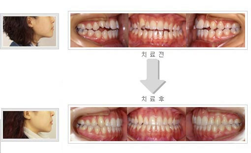 치아 사이가 떠 있을때 교정치료로 치료한 사진