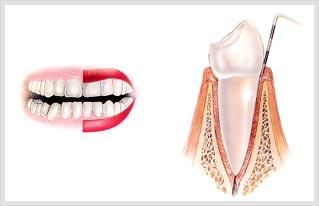 치주조직 사진