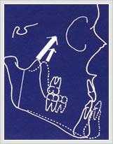 주걱턱 교정방법 사진
