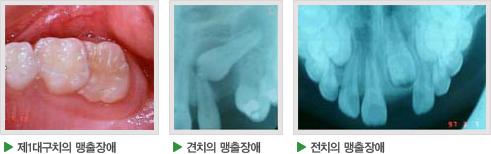 제1대구치의 맹출장애, 견치의 맹출장애, 전치의 맹출장애 사진