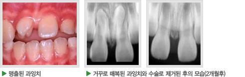 맹출된 과잉치, 거꾸로 매복된 과잉치와 수술로 제거된 후의 모습(2개월 후) 사진